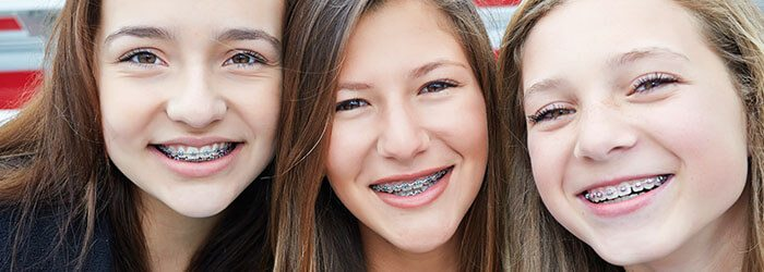 Do braces make you look better