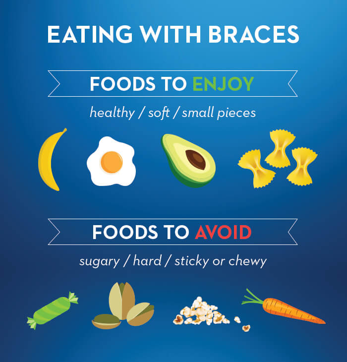 What You Can And Can T Eat With Braces Oral B