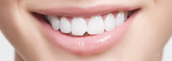 Chipped Tooth Repair by Dental Bonding