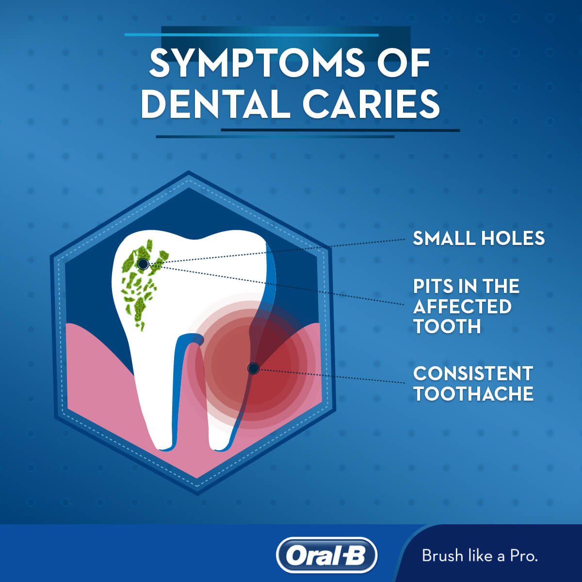 How to treat various types of caries 49