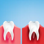 Types Gum Disease Stages Factors Related Conditions-145x145