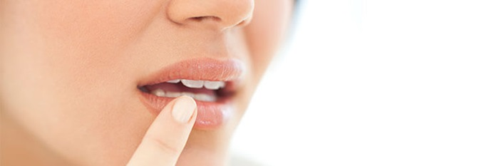 Cold Sores Causes Symptoms Treatments