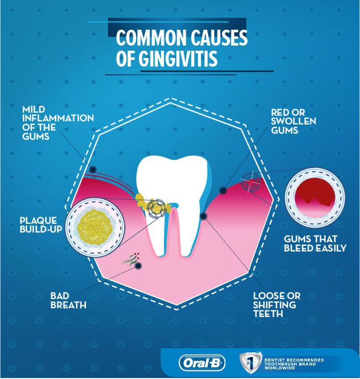 common causes of gingivitis