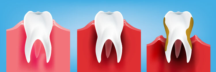 What Gingivitis Symptoms Causes Treatments