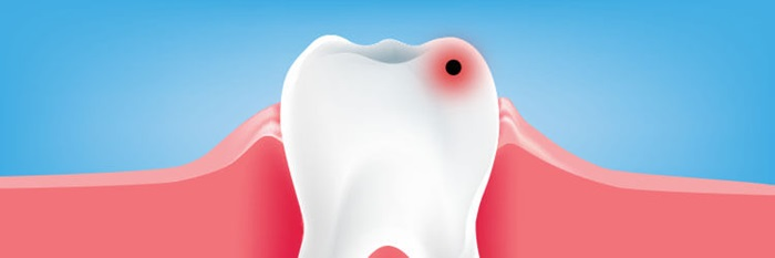 what are dental caries treatments signs and symptoms