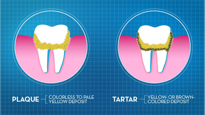 tooth plaque and dental tartar oral b
