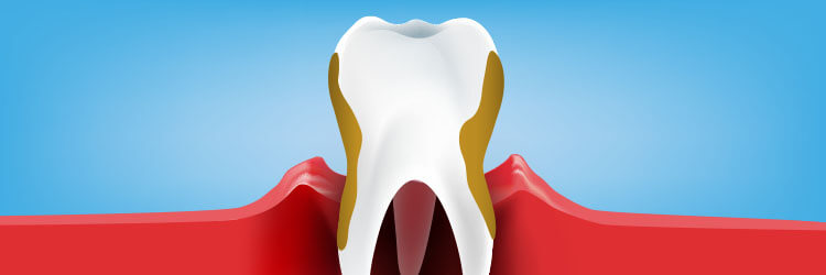 What-Periodontitis