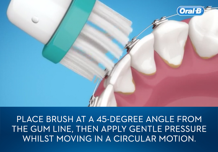 How to Brush Your Teeth and Floss With Braces   Oral-B
