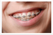 Apologise, Info on braces for adults share