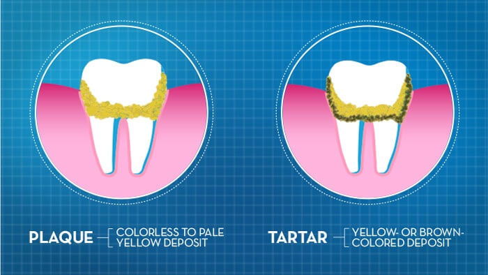 What is tooth plaque and tartar and how to remove them