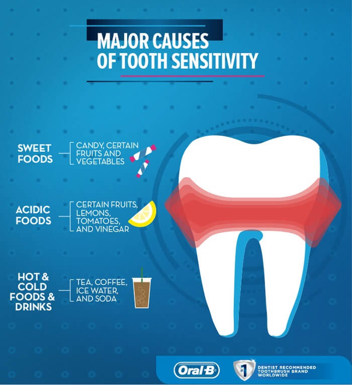 What is tooth sensitivity and exposed dentin