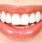 What to expect from teeth whitening