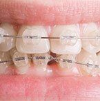 When to get dental braces
